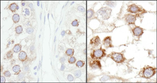 Immunohistochemistry (Formalin/PFA-fixed paraffin-embedded sections) - Anti-JLP antibody (ab12331)