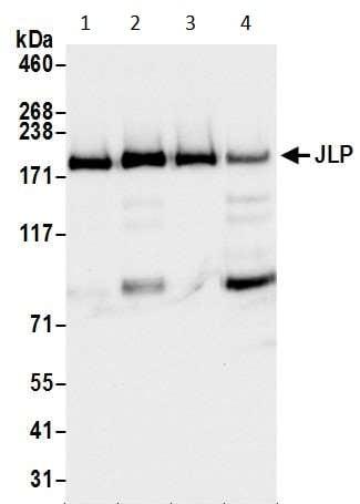 Western blot - Anti-JLP antibody (ab12331)