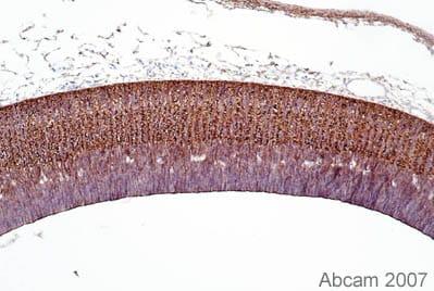 Immunohistochemistry (Formalin/PFA-fixed paraffin-embedded sections) - Anti-Drebrin antibody [M2F6] (ab12350)