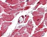 Immunohistochemistry - Anti-Hsp27 antibody (ab12351)