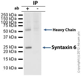 Immunoprecipitation - Anti-Syntaxin 6 antibody [3D10] - Golgi Membrane Marker (ab12370)