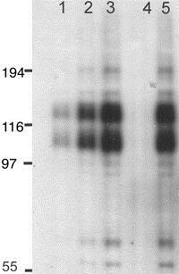 Western blot - Mouse Glutamate Receptor 1 (AMPA subtype) (phospho T840) peptide (ab12399)