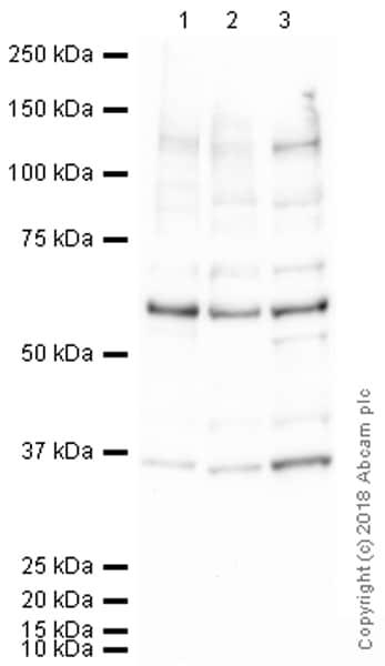 Western blot - Anti-KMT1A / SUV39H1 antibody [44.1] - ChIP Grade (ab12405)