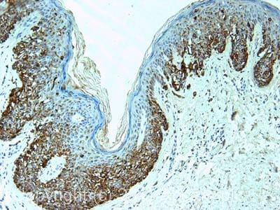Immunohistochemistry (Formalin/PFA-fixed paraffin-embedded sections) - Anti-Melanoma antibody [PNL2] (ab12502)
