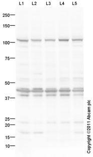 Western blot - Anti-PTPD1/PTPN21 antibody (ab12550)