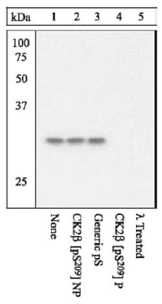 Western blot - Anti-Casein Kinase 2 beta (phospho S209) antibody (ab12861)