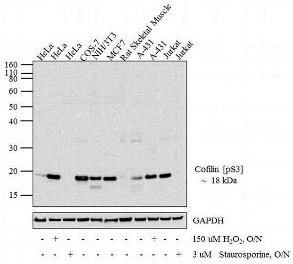 Western blot - Anti-Cofilin (phospho S3) antibody (ab12866)
