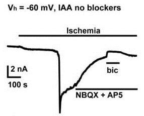 Functional Studies - D-AP5, NMDA glutamate site antagonist (ab120003)