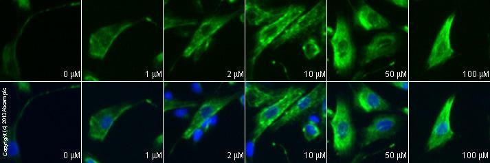 功能研究-NMDA,兴奋性毒性氨基酸(ab120052)