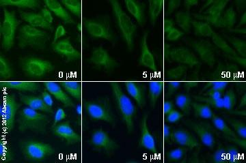 Functional Studies - Y-27632 dihydrochloride, Rho kinase inhibitor (ab120129)