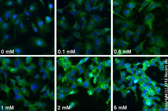 Functional Studies - AICAR (Acadesine/AICA riboside), AMPK activator (ab120358)