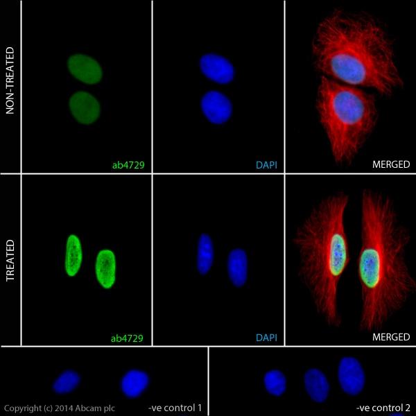 Immunocytochemistry/ Immunofluorescence - Sodium butyrate, Histone deacetylase inhibitor (ab120948)
