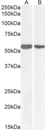 Western blot - Anti-NOX1 antibody (ab121009)
