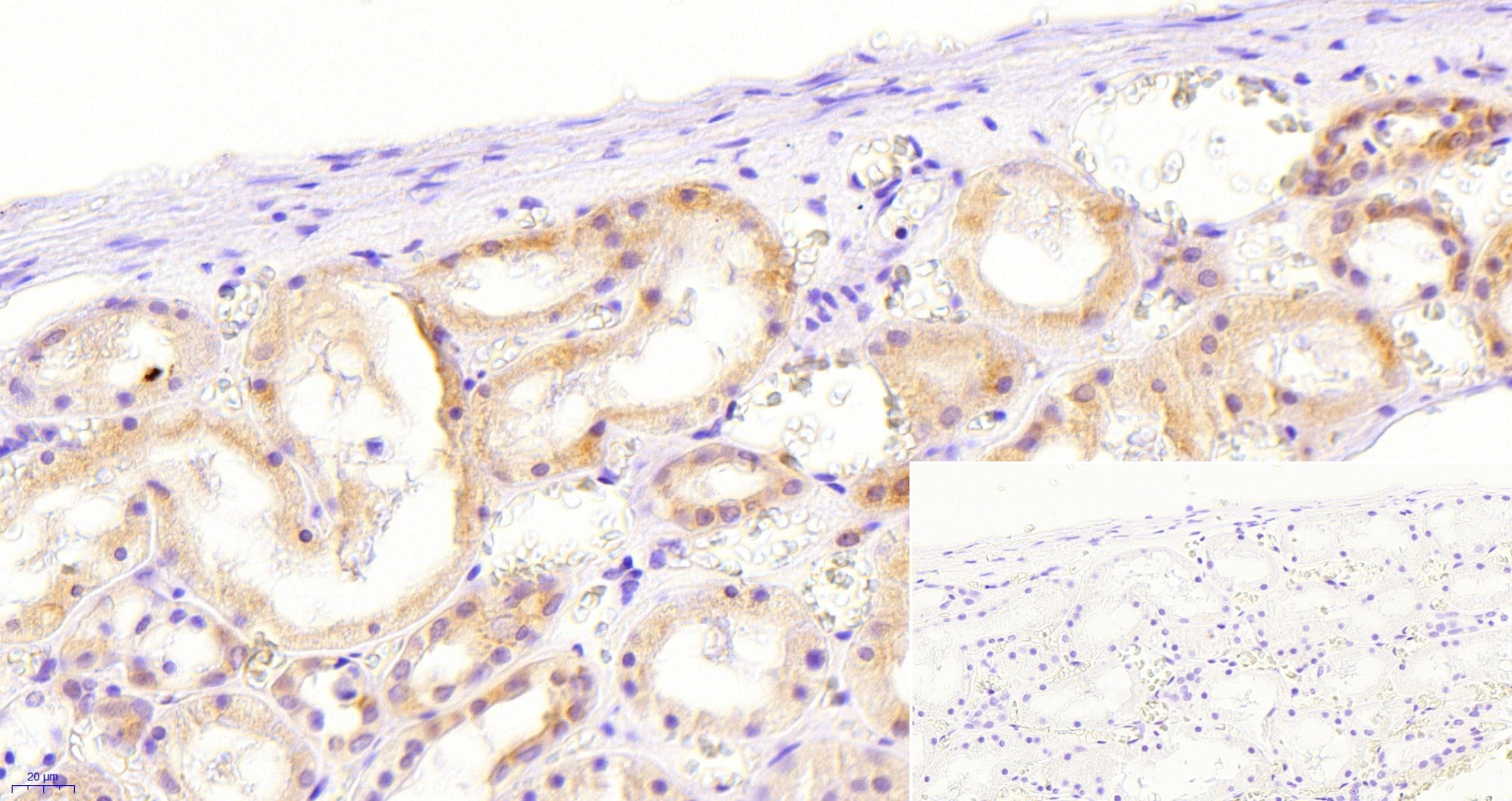 Immunohistochemistry (Formalin/PFA-fixed paraffin-embedded sections) - Anti-NOX1 antibody (ab121009)