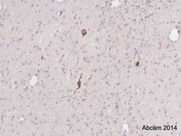 Immunohistochemistry (Formalin/PFA-fixed paraffin-embedded sections) - Anti-TPH2 antibody (ab121013)
