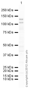 Western blot - Anti-THBS4 antibody (ab121094)