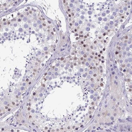 Immunohistochemistry (Formalin/PFA-fixed paraffin-embedded sections) - Anti-MORC4 antibody (ab121099)