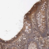 Immunohistochemistry (Formalin/PFA-fixed paraffin-embedded sections) - Anti-ARMCX4 antibody (ab121101)