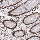 Immunohistochemistry (Formalin/PFA-fixed paraffin-embedded sections) - Anti-PHF14 antibody (ab121103)