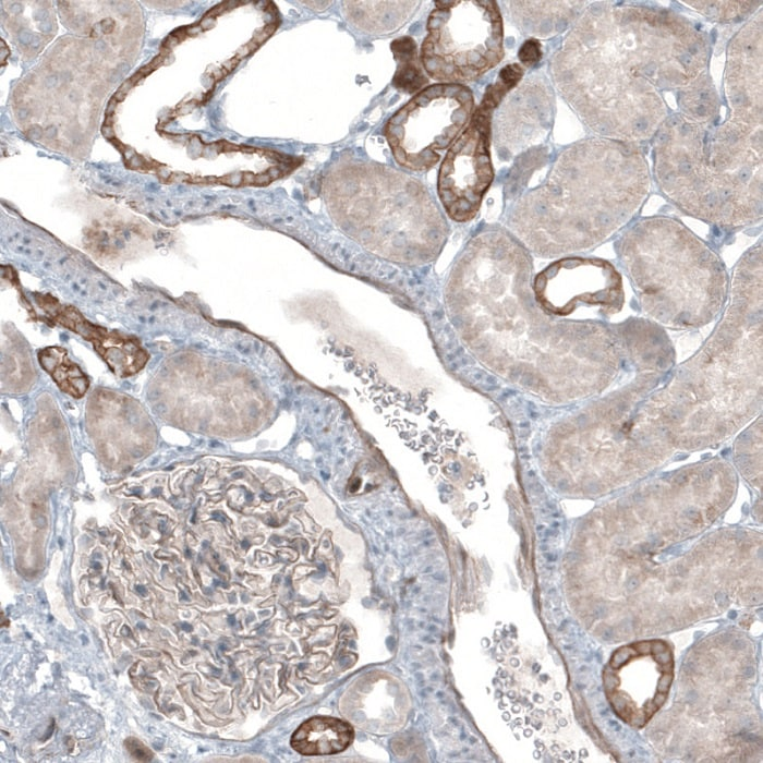 Immunohistochemistry (Formalin/PFA-fixed paraffin-embedded sections) - Anti-THSD7A antibody (ab121122)