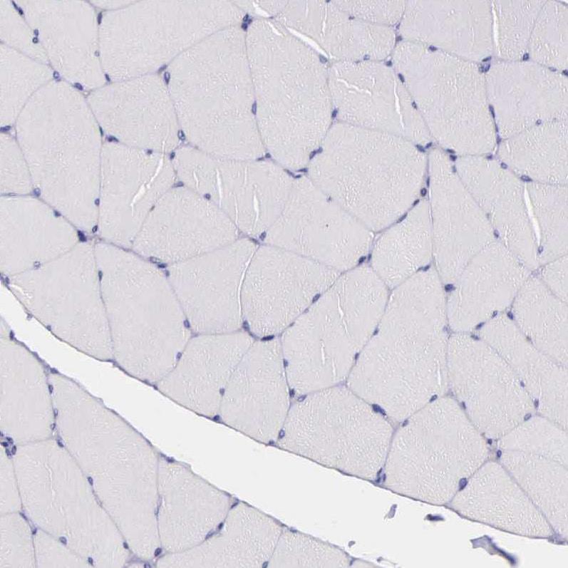 Immunohistochemistry (Formalin/PFA-fixed paraffin-embedded sections) - Anti-THSD7A antibody (ab121122)