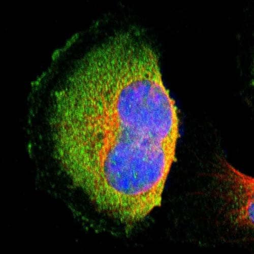Immunocytochemistry/ Immunofluorescence - Anti-HTF9C/TRMT2A antibody (ab121126)