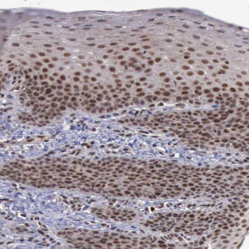 Immunohistochemistry (Formalin/PFA-fixed paraffin-embedded sections) - Anti-HTF9C/TRMT2A antibody (ab121126)