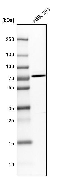 Western blot - Anti-HTF9C/TRMT2A antibody (ab121126)