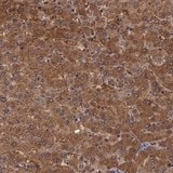 Immunohistochemistry (Formalin/PFA-fixed paraffin-embedded sections) - Anti-PLEK2 antibody (ab121131)