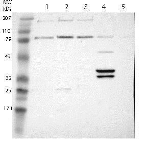Western blot - Anti-PLEK2 antibody (ab121131)