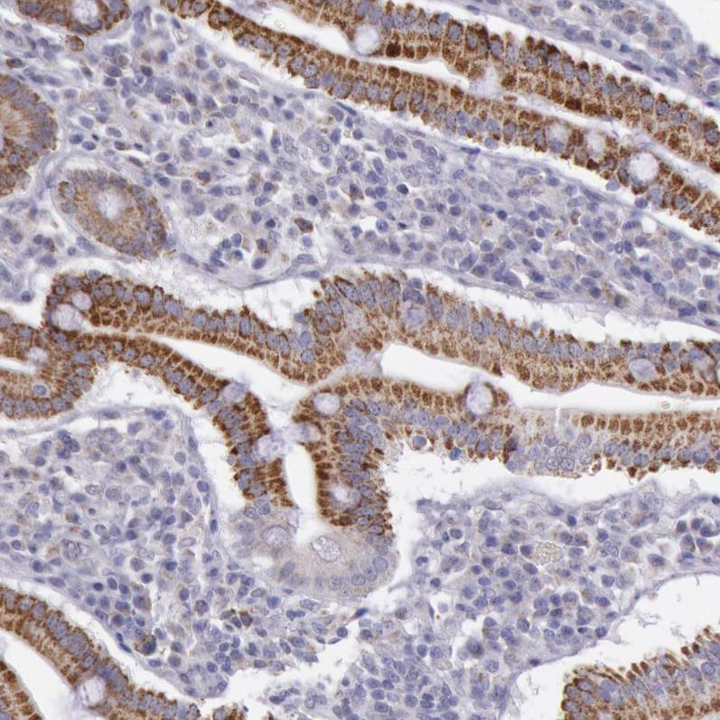 Immunohistochemistry (Formalin/PFA-fixed paraffin-embedded sections) - Anti-FRMD6/Willin antibody (ab121133)