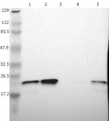 Western blot - Anti-TAGLN2 antibody (ab121146)