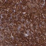 Immunohistochemistry (Formalin/PFA-fixed paraffin-embedded sections) - Anti-USP51 antibody (ab121147)