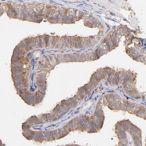 Immunohistochemistry (Formalin/PFA-fixed paraffin-embedded sections) - Anti-STON2 antibody (ab121165)