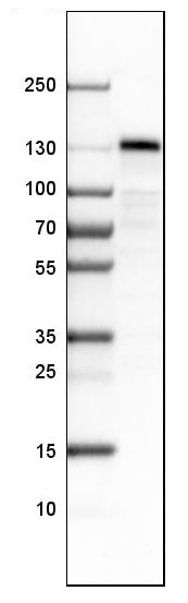 Western blot - Anti-STON2 antibody (ab121165)