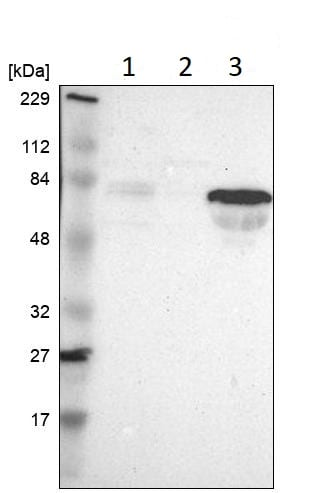 Western blot - Anti-ALS2CR13 antibody (ab121180)