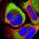 Immunocytochemistry/ Immunofluorescence - Anti-RPLP1 antibody (ab121190)
