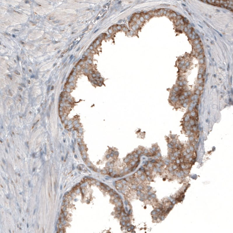Immunohistochemistry (Formalin/PFA-fixed paraffin-embedded sections) - Anti-RPLP1 antibody (ab121190)