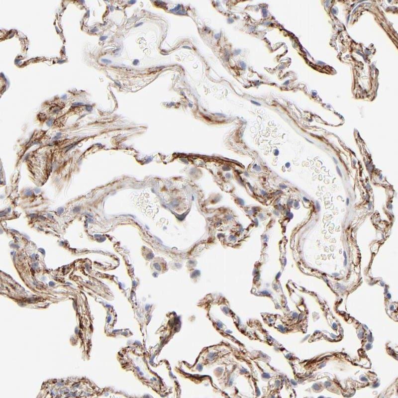 Immunohistochemistry (Formalin/PFA-fixed paraffin-embedded sections) - Anti-LTBP2 antibody (ab121193)
