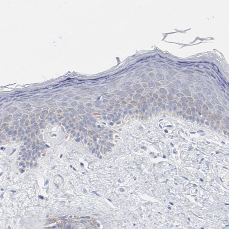Immunohistochemistry (Formalin/PFA-fixed paraffin-embedded sections) - Anti-CHCHD10 antibody (ab121196)