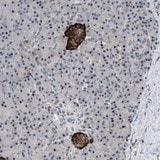 Immunohistochemistry (Formalin/PFA-fixed paraffin-embedded sections) - Anti-DHHC-15 antibody (ab121203)