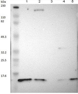 Western blot - Anti-DYNLT3 antibody (ab121209)