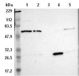 Western blot - Anti-TAPP-2 antibody (ab121218)