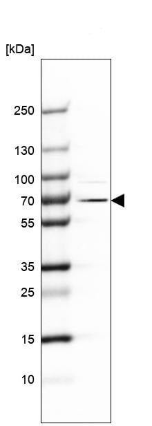 Western blot - Anti-EXD2 antibody (ab121236)