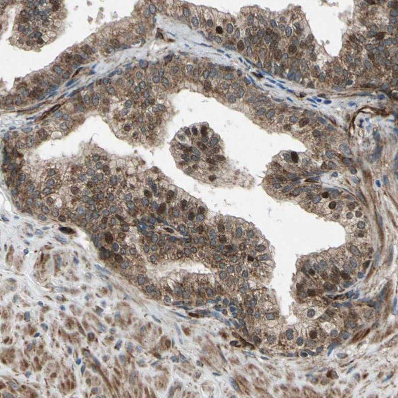 Immunohistochemistry (Formalin/PFA-fixed paraffin-embedded sections) - Anti-EXD2 antibody (ab121236)