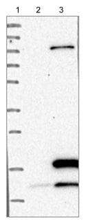 Western blot - Anti-POLR3K antibody (ab121238)