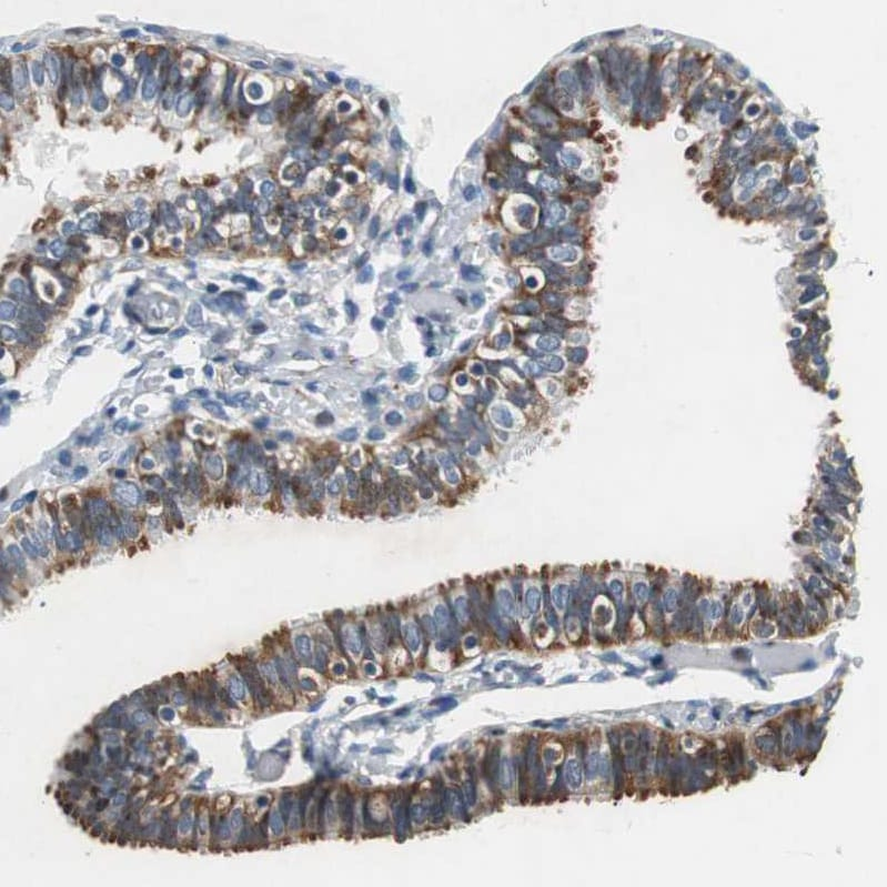 Immunohistochemistry (Formalin/PFA-fixed paraffin-embedded sections) - Anti-RPL35 antibody (ab121244)
