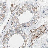 Immunohistochemistry (Formalin/PFA-fixed paraffin-embedded sections) - Anti-LY6G6F antibody (ab121272)
