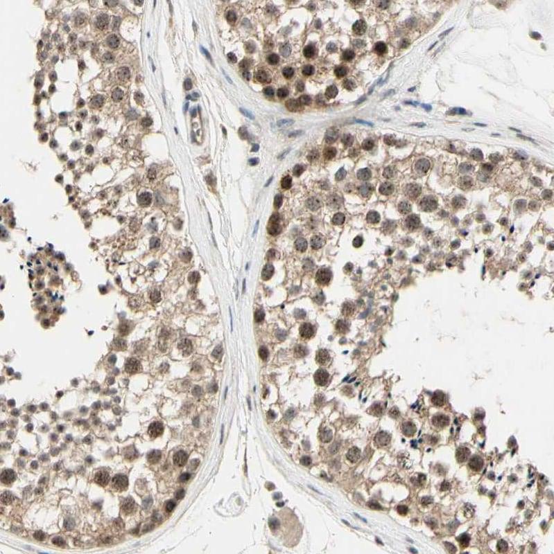 Immunohistochemistry (Formalin/PFA-fixed paraffin-embedded sections) - Anti-MCPH1 antibody (ab121277)