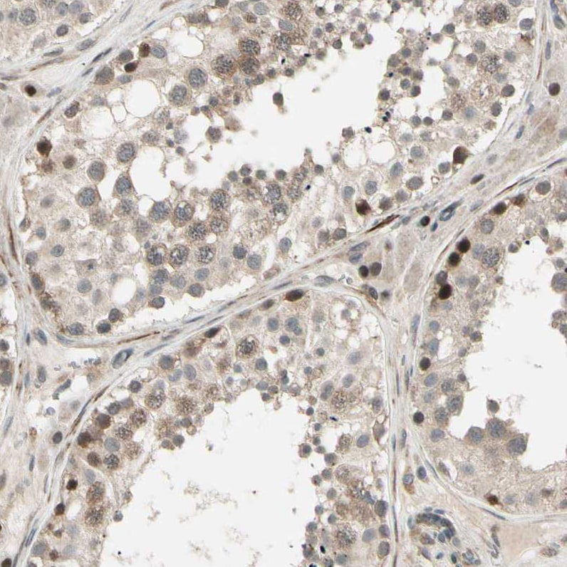 Immunohistochemistry (Formalin/PFA-fixed paraffin-embedded sections) - Anti-CCDC23 antibody (ab121282)